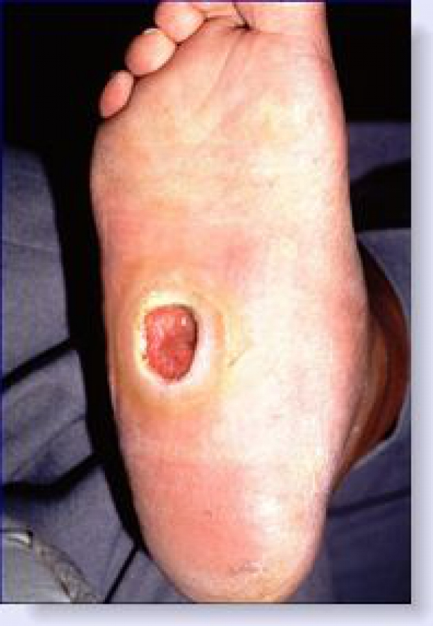 Medication for diabetic wound management